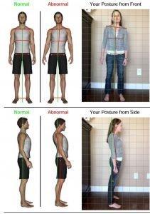 Chiropractic Posture Screen